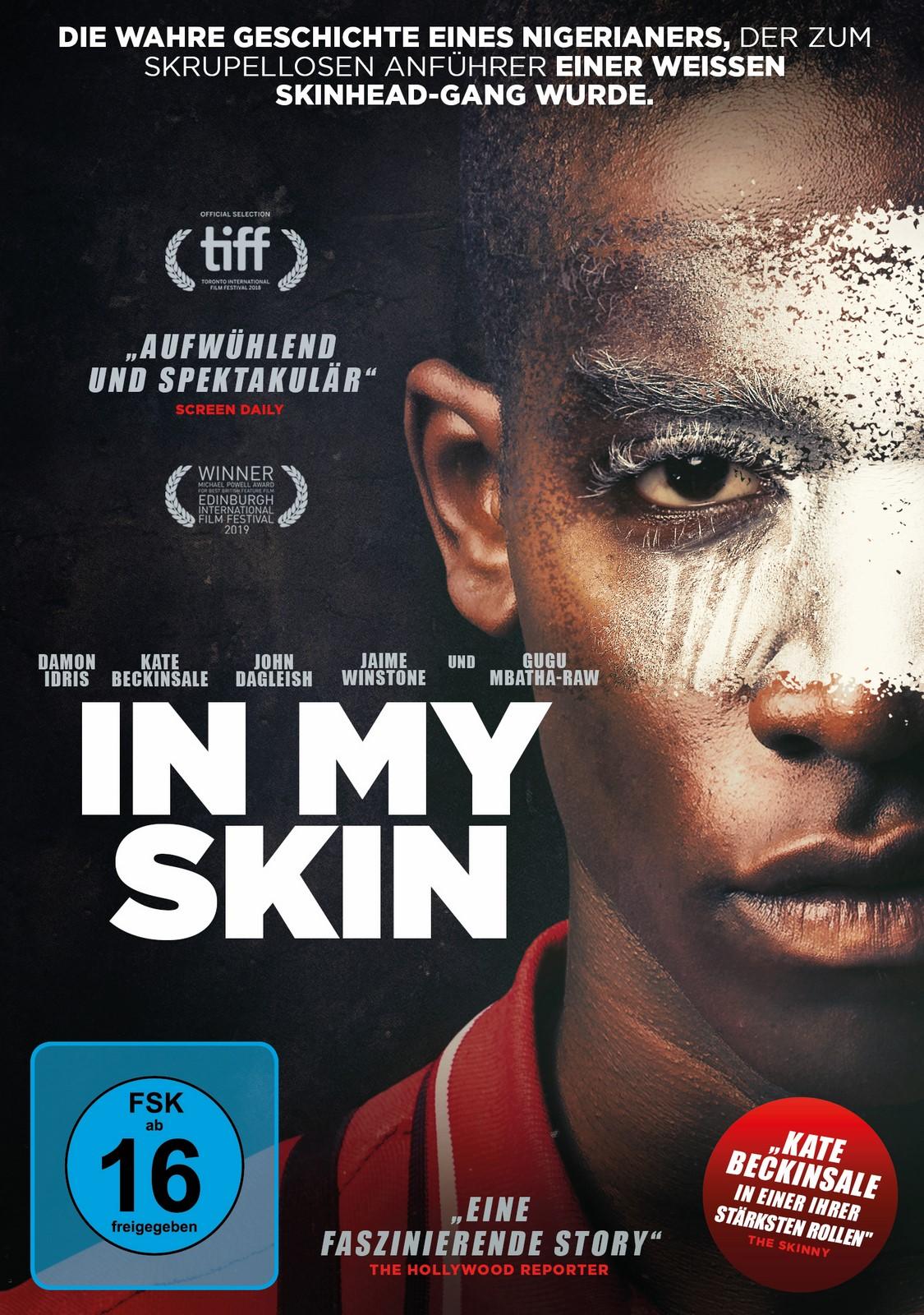 My Skin